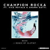 Thumbnail for the Champion Rocka - Beso link, provided by host site
