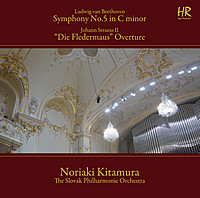 Thumbnail for the Johann Strauss II - Die Fledermaus: Overture link, provided by host site