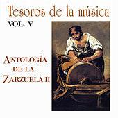 Thumbnail for the Orquesta Sinfónica de Madrid - La Leyenda del Beso, Acto II: Intermedio musical link, provided by host site